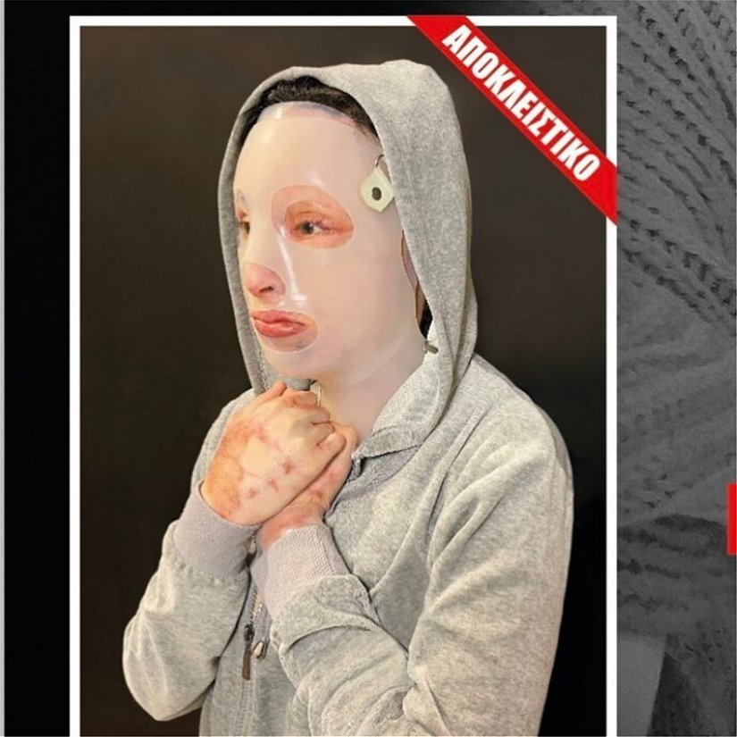 Επίθεση με βιτριόλι: Ομολόγησε η 35χρονη Έφη ένα χρόνο μετά | Pronews